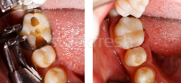 Stock photo: Tooth filling by dentist