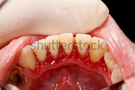 After Dental Treatment Stock photo © Lighthunter