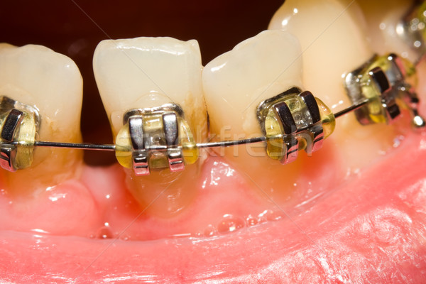 Closing of gap with dental braces Stock photo © Lighthunter