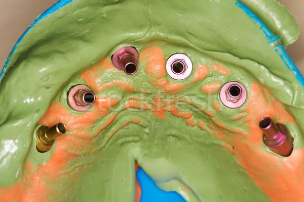 Pracy stomatologicznych wrażenie usta stomatologia transfer Zdjęcia stock © Lighthunter