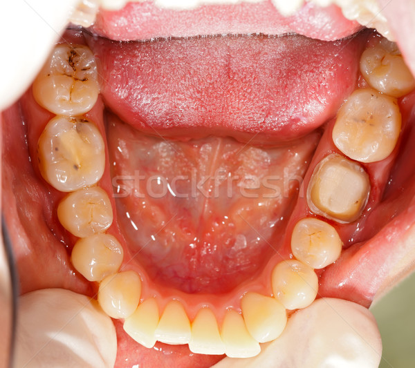 Denture Under Treatment Stock photo © Lighthunter