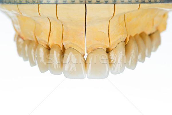 Kerámia fogak fogászati híd gyönyörű porcelán Stock fotó © Lighthunter