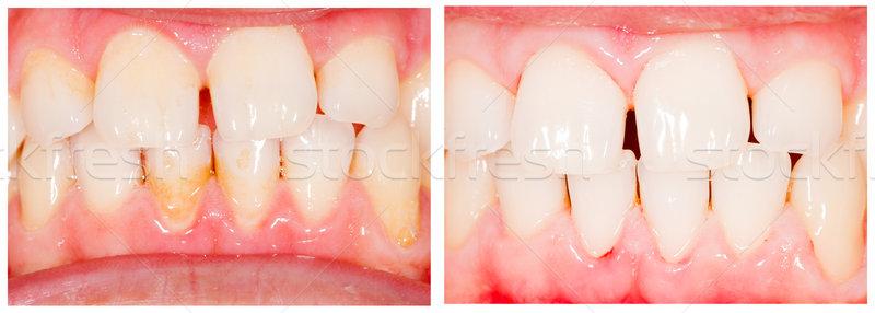 Fogfehérítés fogak fog fehérítés kezelés egészség Stock fotó © Lighthunter