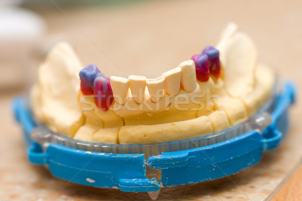 Remodeling of teeth of wax Stock photo © Lighthunter
