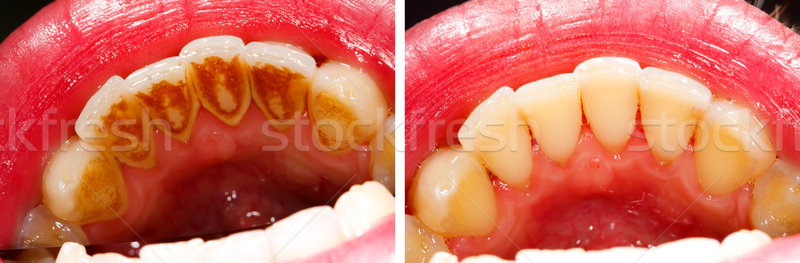 Before and after treatment - teeth Stock photo © Lighthunter