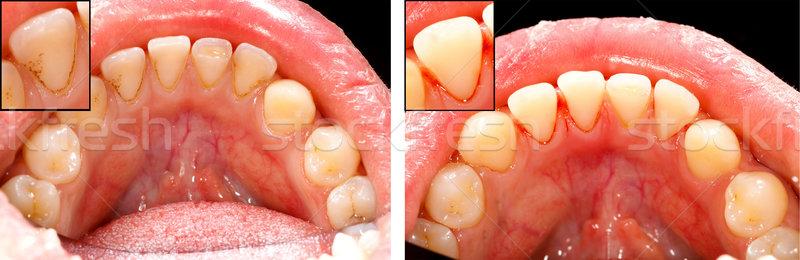 чистой зубов воздуха блок служба рот Сток-фото © Lighthunter