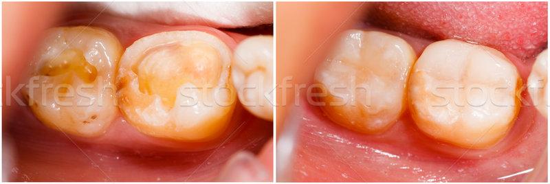 Kezelés emberi fogászati munka orvosi egészség Stock fotó © Lighthunter