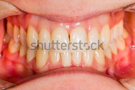 Dental frattura view paziente denti dentista Foto d'archivio © Lighthunter