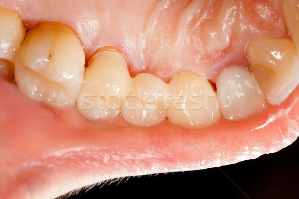 Pressed ceramic teeth Stock photo © Lighthunter