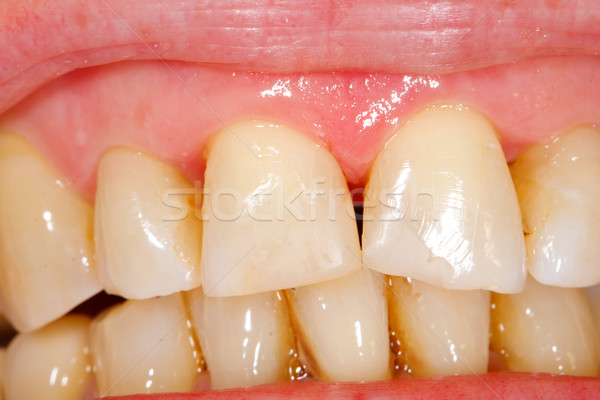 Comnposite filling tooth treatment Stock photo © Lighthunter