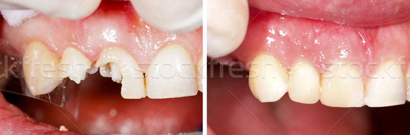 Destructed teeth filling Stock photo © Lighthunter