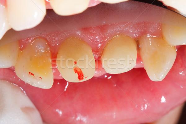 Base dentales tratamiento corona mi Foto stock © Lighthunter
