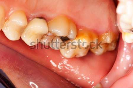 Cleaned cavities Stock photo © Lighthunter