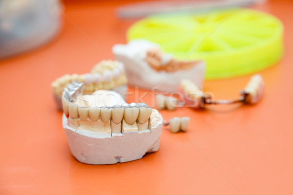 Metalo-acrylic teeth Stock photo © Lighthunter