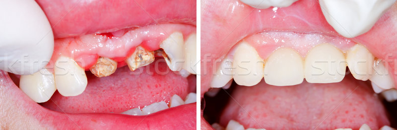 Teeth root rest before and after treatment Stock photo © Lighthunter
