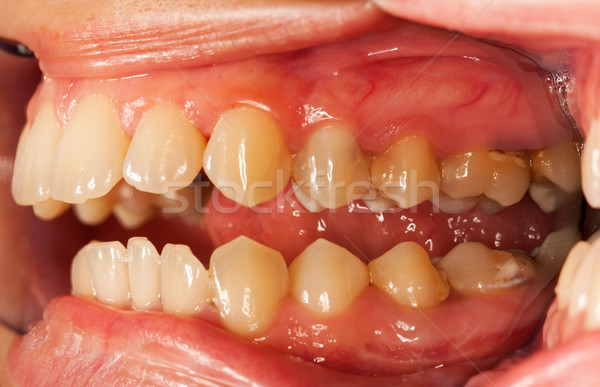Umani denti open bocca speciale dental Foto d'archivio © Lighthunter