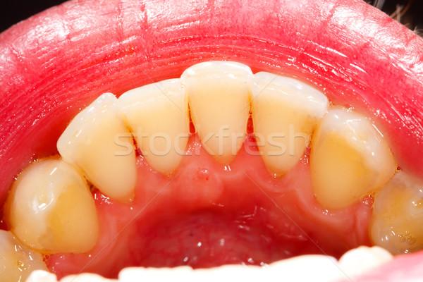 Photo stock: Humaine · dents · santé · médecine · dents · dentaires