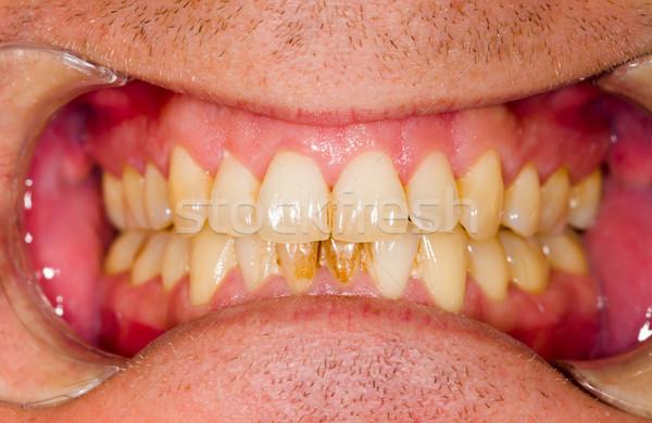 курение стоматологических знак медицинской здоровья Сток-фото © Lighthunter