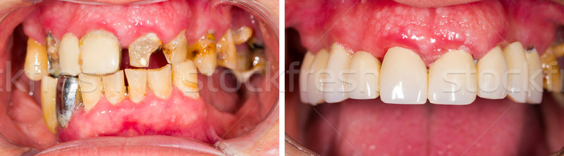 Denture Before and After Treatment Stock photo © Lighthunter