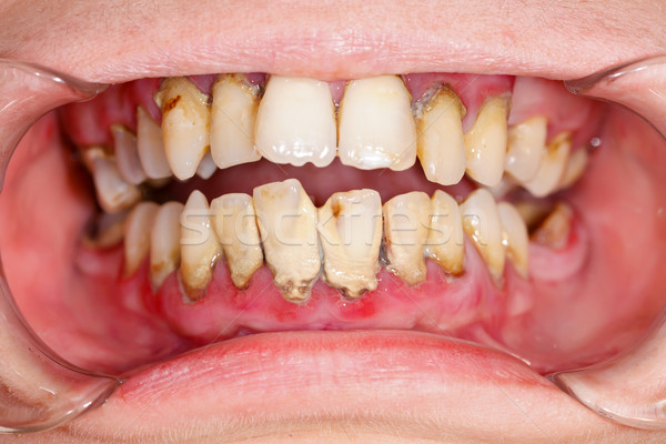 Menschlichen Mund zahnärztliche Behandlung Plaque Zähne Stock foto © Lighthunter