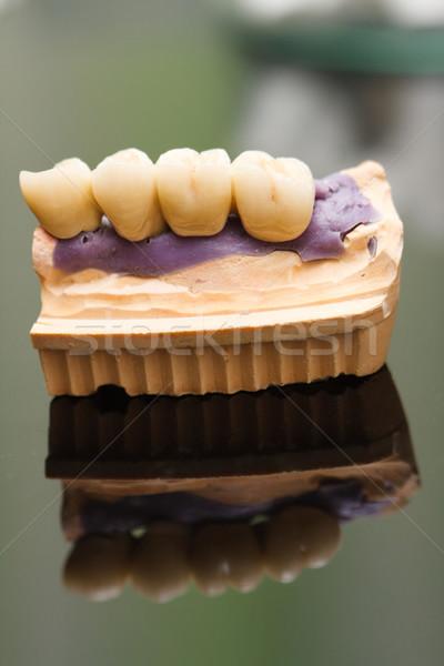 Dentales puente fijado foto dentista Foto stock © Lighthunter
