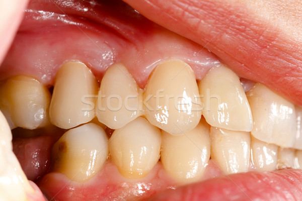 Pressed ceramic teeth in oral cavity Stock photo © Lighthunter