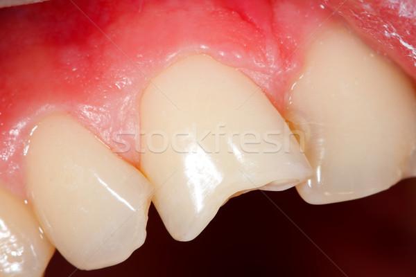 Fractured teeth Stock photo © Lighthunter