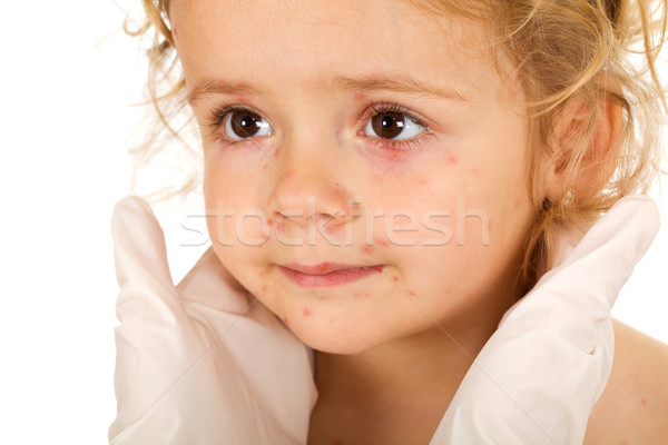 Little girl with small pox at the physician Stock photo © lightkeeper