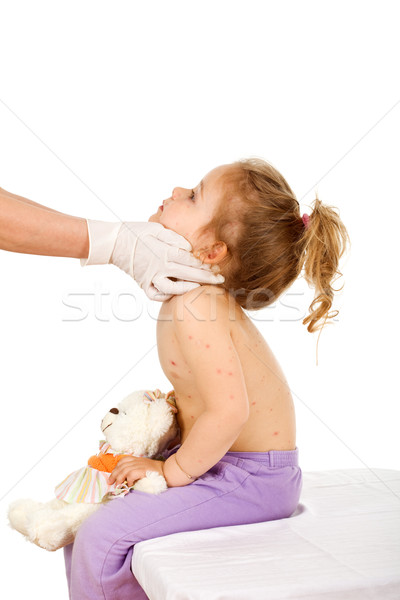 Doctor examining kid with small pox or skin rash Stock photo © lightkeeper