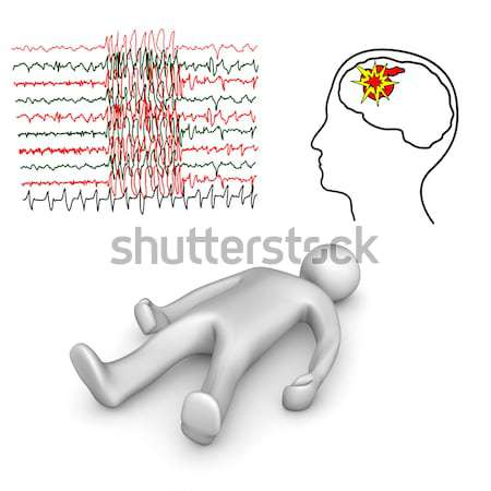 Apoplectic And Epileptic Stroke Stock photo © limbi007