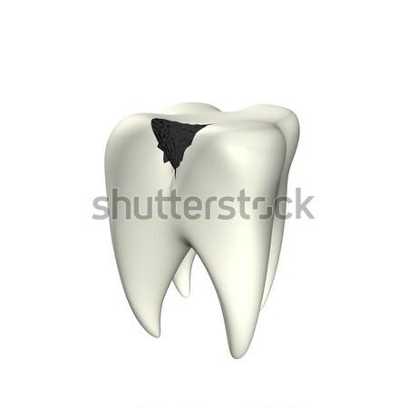 Caries Tooth 3D Stock photo © limbi007
