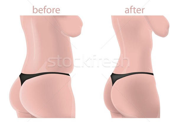 Woman body before and after Stock photo © lindwa