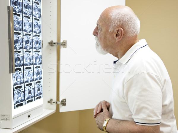 Verwarrend testresultaten verward senior man kantoor Stockfoto © lisafx