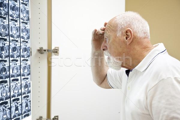 Medische resultaten bezorgd senior man Stockfoto © lisafx