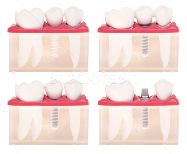 Implant dental model Stock photo © luissantos84
