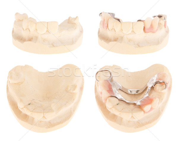 Chrome cobalt denture Stock photo © luissantos84