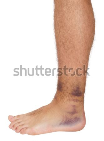 Ankle Sprain Stock photo © luissantos84