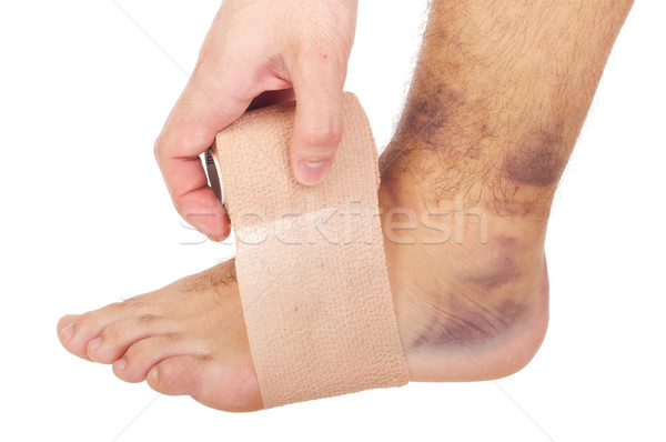 Bandaging a sprained ankle Stock photo © luissantos84