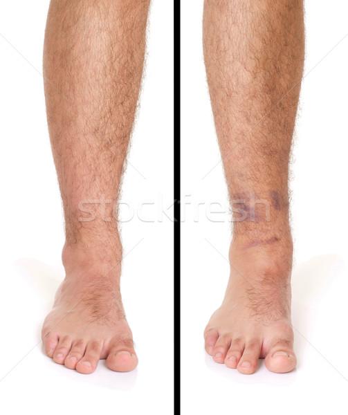 Caviglia distorsione giovani maschio isolato bianco Foto d'archivio © luissantos84