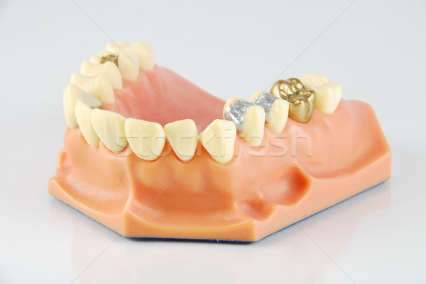 Dental model (with different treatments) Stock photo © luissantos84
