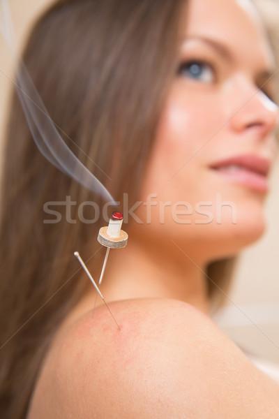 Stock photo: moxibustion acupunture needles heat on woman