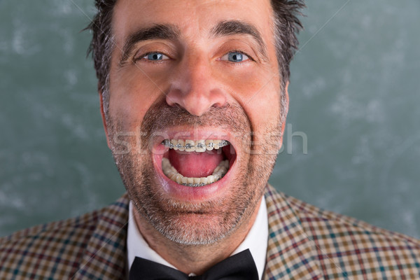 Nerd silly retro man with braces funny expression Stock photo © lunamarina