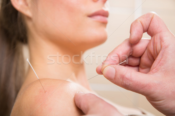 Doctor hands acupuncture needle pricking on woman Stock photo © lunamarina