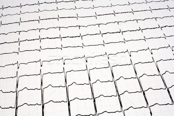 ECG - EKG graph Stock photo © magraphics