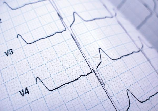 cardiograph Stock photo © martin33