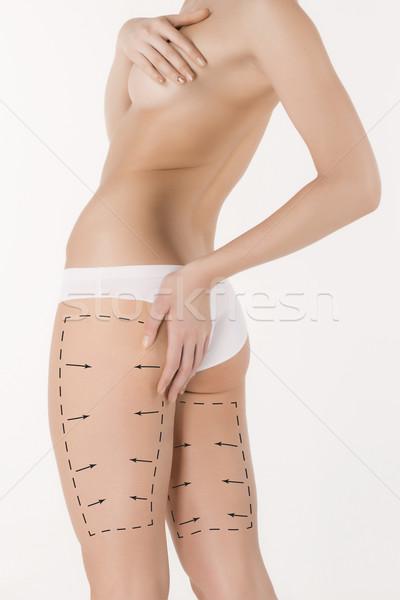 Celulite remoção plano preto mulher jovem corpo Foto stock © master1305