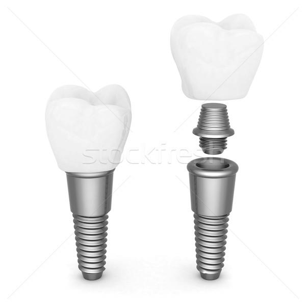 Dental implants Stock photo © mastergarry