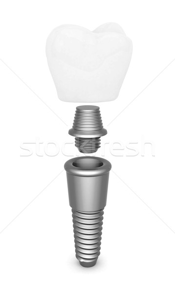 Dental implant Stock photo © mastergarry