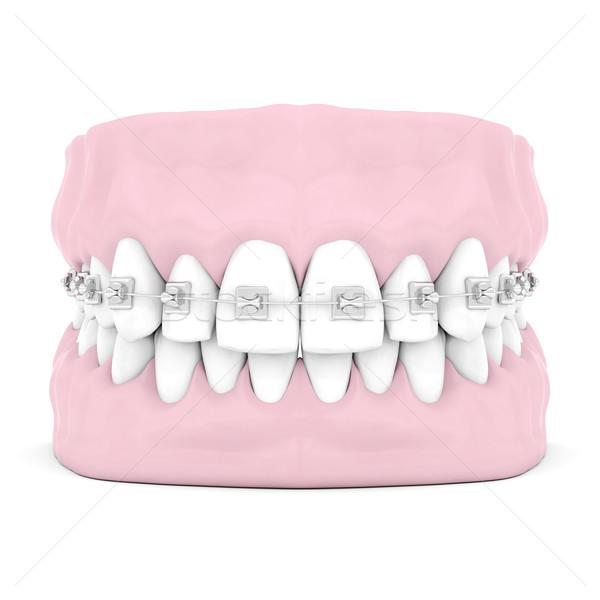 Diş pantolon askısı yalıtılmış beyaz ağız dişçi Stok fotoğraf © mastergarry