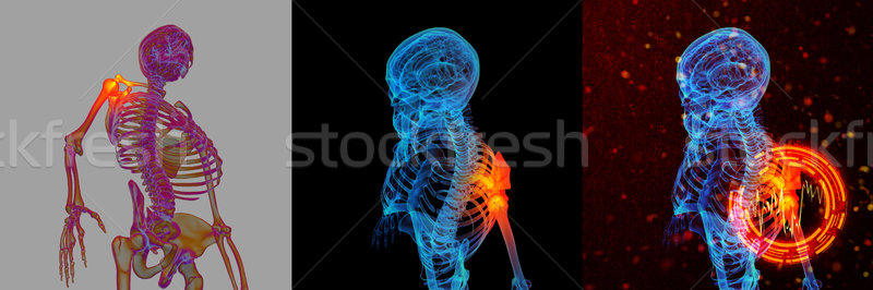 3D rendering human of shoulder pain  Stock photo © maya2008